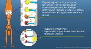 Перевернутые стойки на руках, на голове и на плечах опасны для вашего здоровья!
