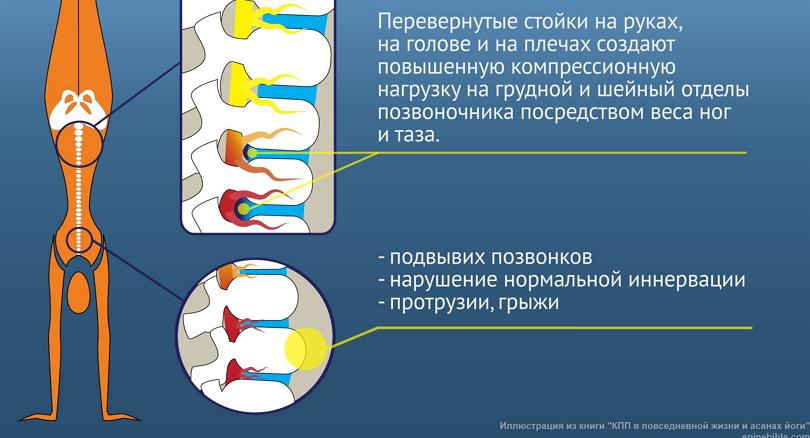 Перевернутые стойки опасны для здоровья