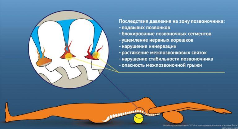 Катание на валике опасно для здоровья позвоночника!