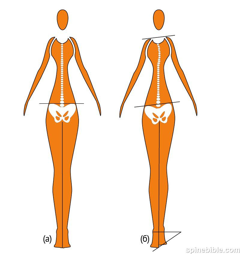 Смещение тазовых костей: причины и диагностика