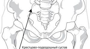 Смещение тазовых костей, или вывих таза