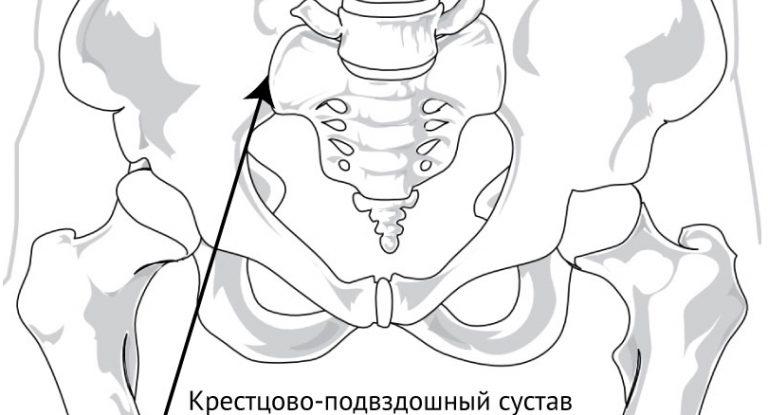 Смещение тазовых костей: причины, последствия и диагностика