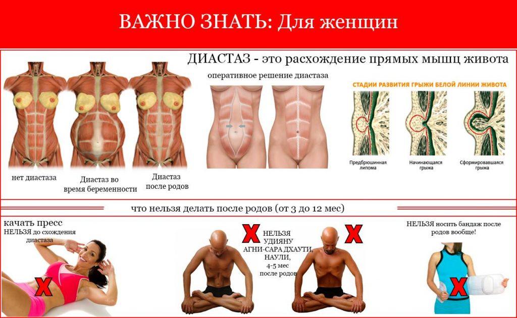 диастаз - расхождение прямых мышц живота