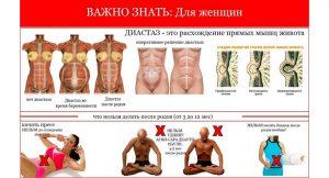 Диастаз — расхождение прямых мышц живота, ч.1
