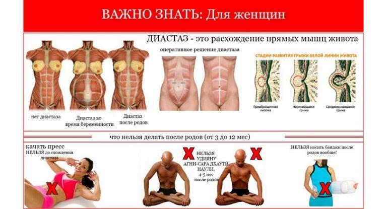 Важно знать: диастаз — расхождение прямых мышц живота