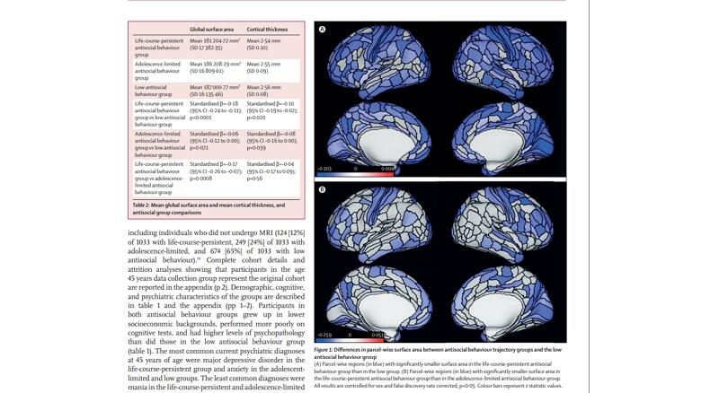 Антисоциальное поведение и структура мозга