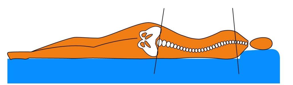 Ортопедический матрас и функциональная интеграция. Деформация позвоночника в положении на боку на жесткой поверхности