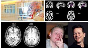 12 привычек для омоложения мозга